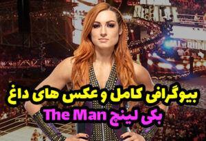بیوگرافی بکی لینچ THE MAN ستاره زن محبوب WWE + عکس های داغ
